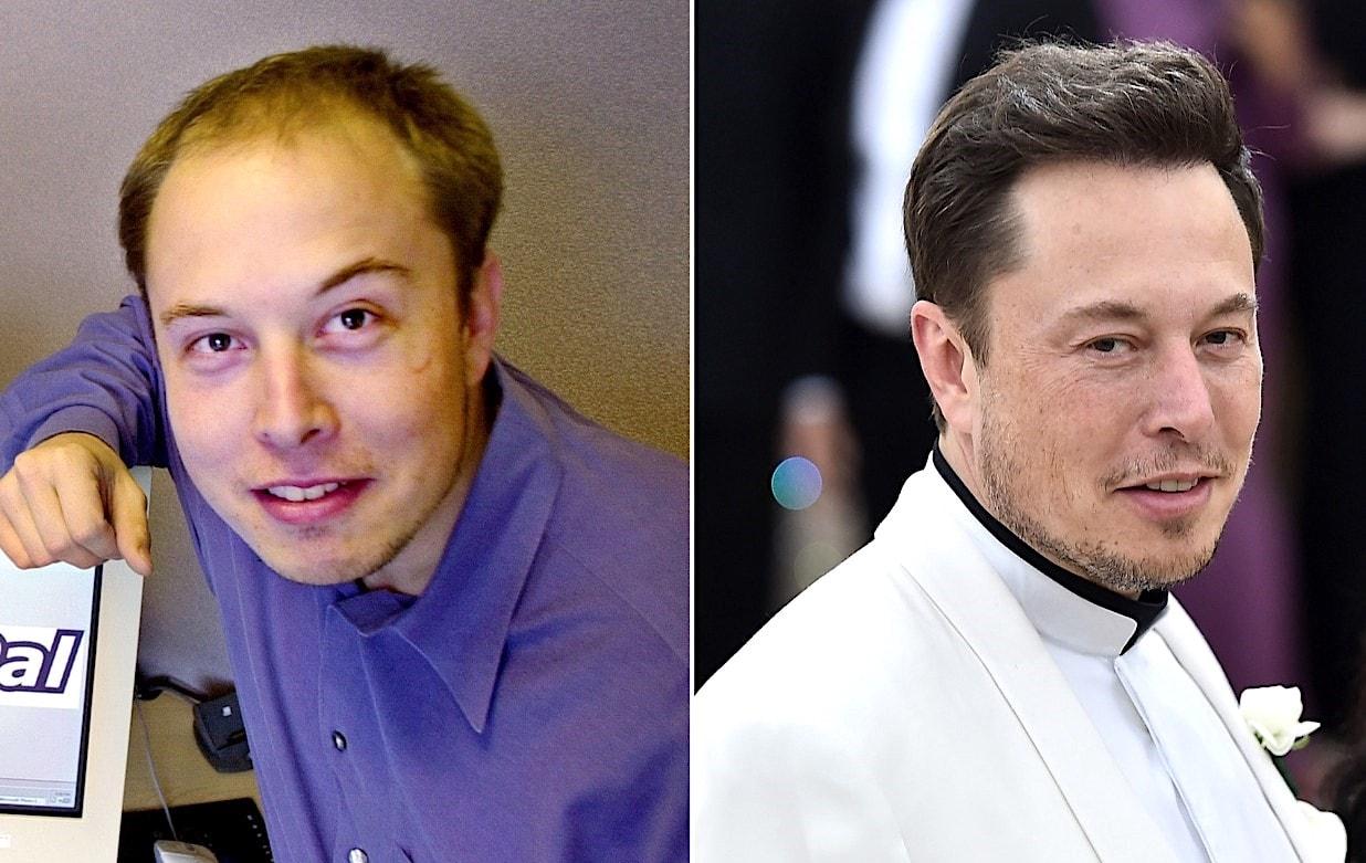 Elon Musk, avant et après sa greffe cheveux