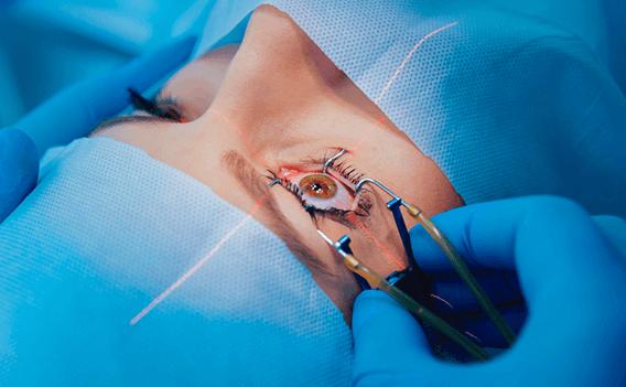 operation-lasik-turquie