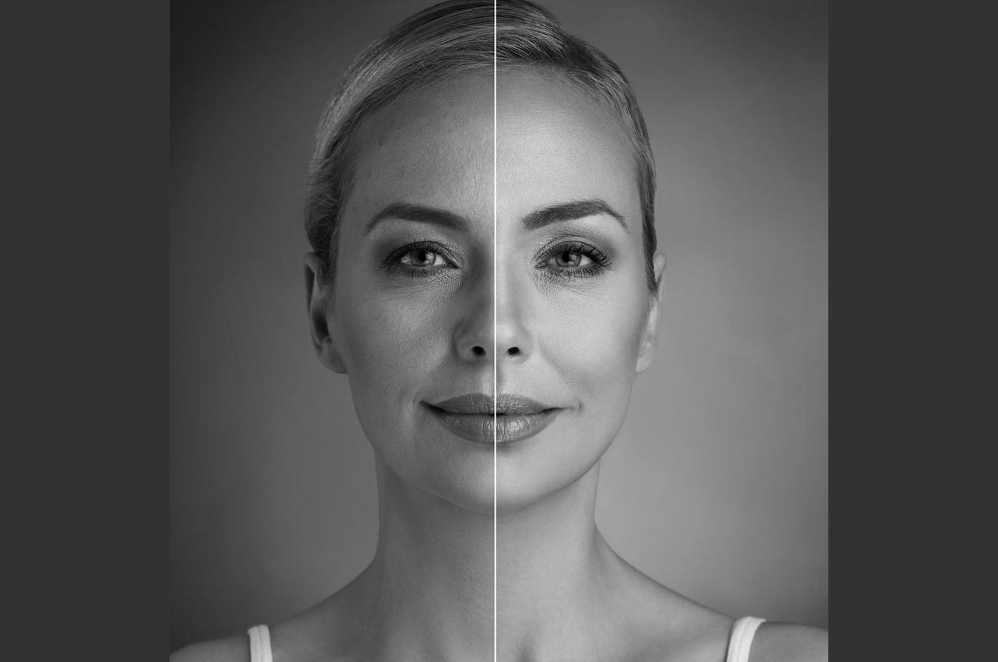 Lipofilling visage en Turquie : déroulement, résultats et prix
