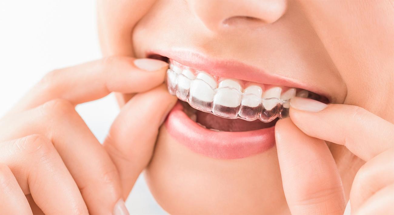 Comment redresser ses dents ?