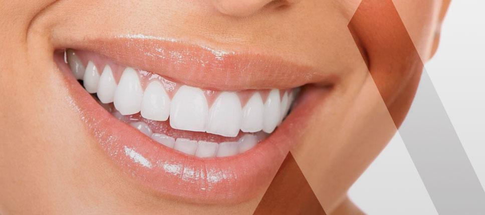 facette-dentaire-tunisie-prix