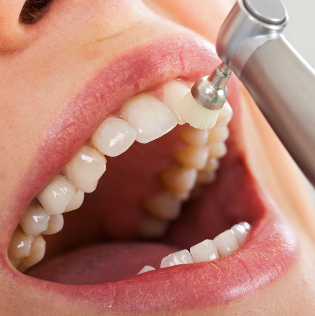 dents-jaunies
