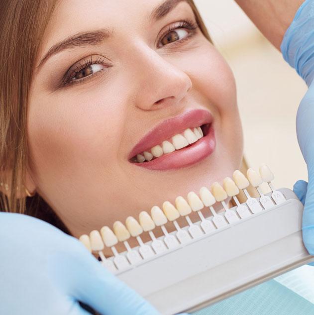 facette dentaire porcelaine