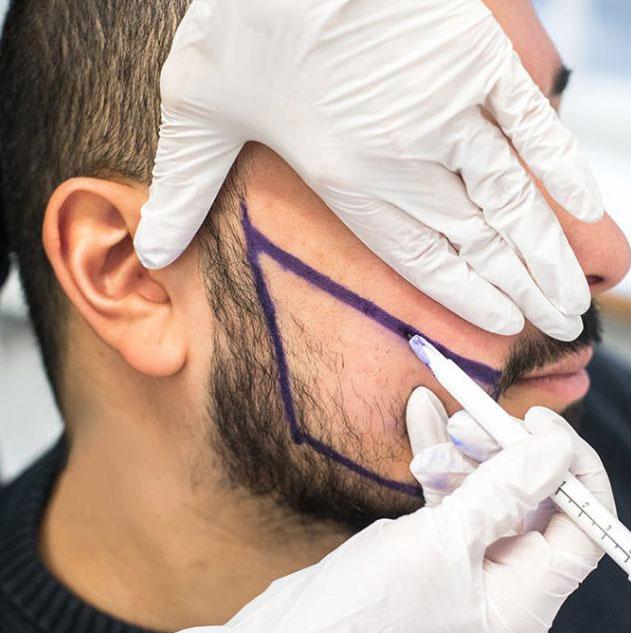 alopecie-barbe