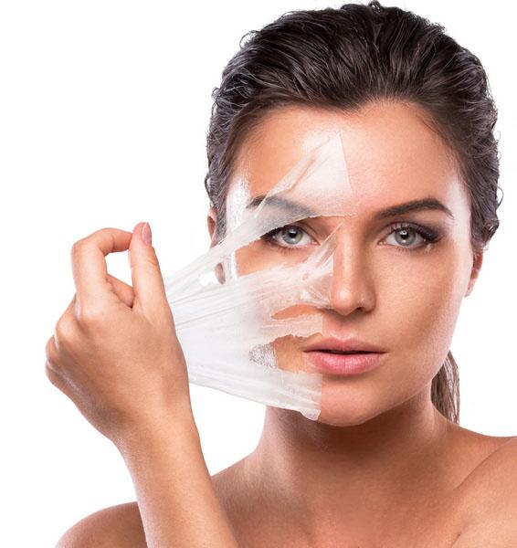 peeling-visage